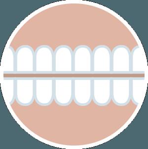 implantes-fase mantenimiento