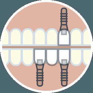 implantes fase quirurgica