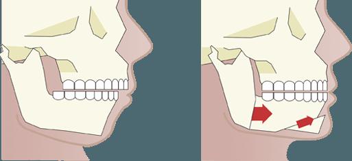 ortognatica illustration