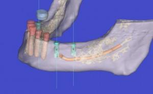 Cirugía guiada e implantes - foto