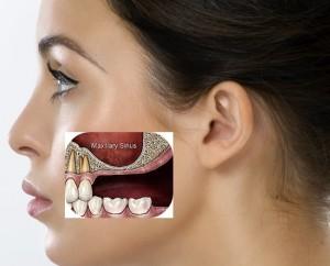 elevacion de seno e implantes dentales