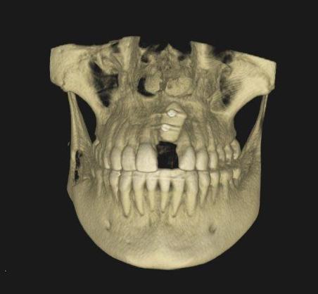 injerto implantes dentales