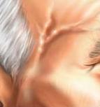 arteritis temporal
