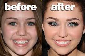 la ortodoncia de hanna montana