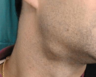 Piedras en las glandulas salivales