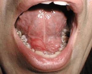 Obstruccion de glandulas salivales
