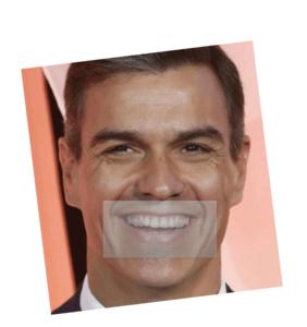 no se puede hacer análisis oclusal de pedro Sánchez