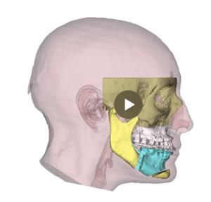 planificacion 3d en cirugia ortognática