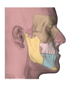 cirugia ortognática SAOS