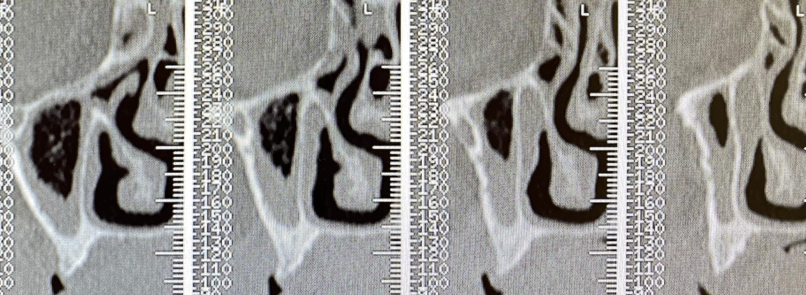 atrofia maxilar