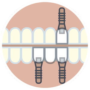 implantes fase quirurgica